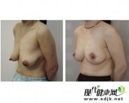 乳房下垂能做手术矫正吗