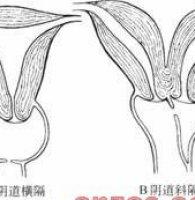 阴道横隔会导致不孕吗