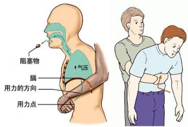 """食物卡喉别拍背部 """"海姆立克急救法""""来应对"""