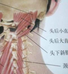 影响头痛、晕的肌肉群