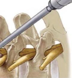 椎间孔镜手术真的安全有效吗