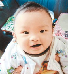 唇腭裂是最常见的先天性畸形 超过35岁如何生个健康宝宝