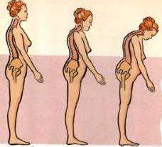抗骨质疏松治疗