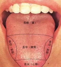 医生如何从舌头看出疾病玄机