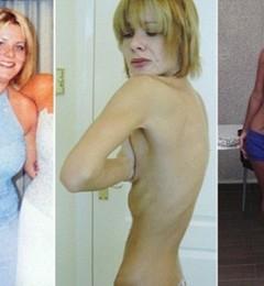 过度节食减肥会严重损害身体健康
