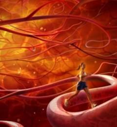 血管寿命已到 人的生命已到了尽头
