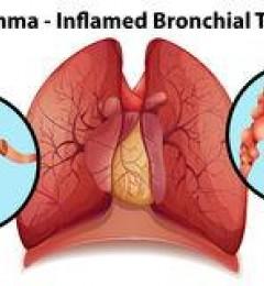 支气管哮喘的发作时间