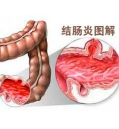 经常拉肚子不可忽视 当心溃疡性结肠炎