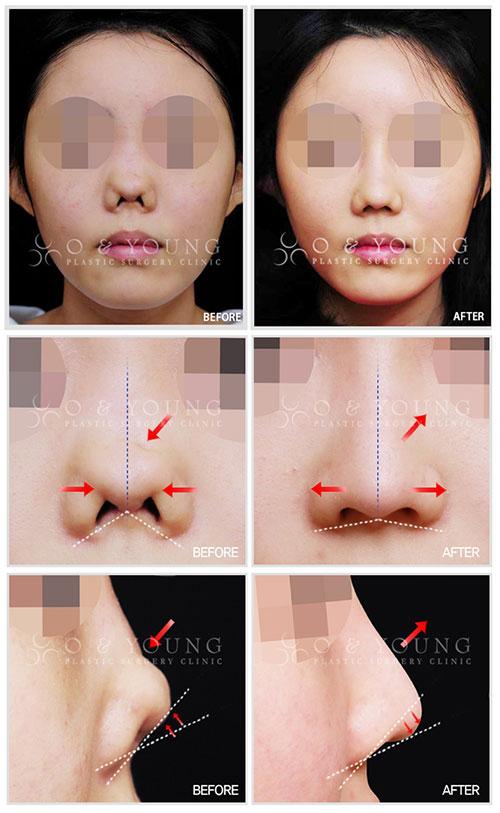 干细胞治疗并行萎缩鼻修复手术已获PRS认证