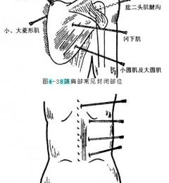 颈肩、腰腿疼痛的封闭治疗法