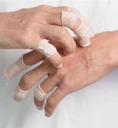 使用止痛贴须见好就收 小心皮肤炎找上你