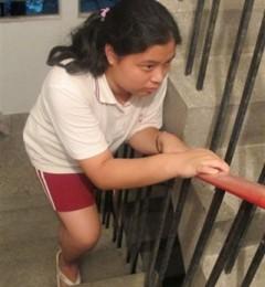 儿童特发性关节炎应及早发现与治疗