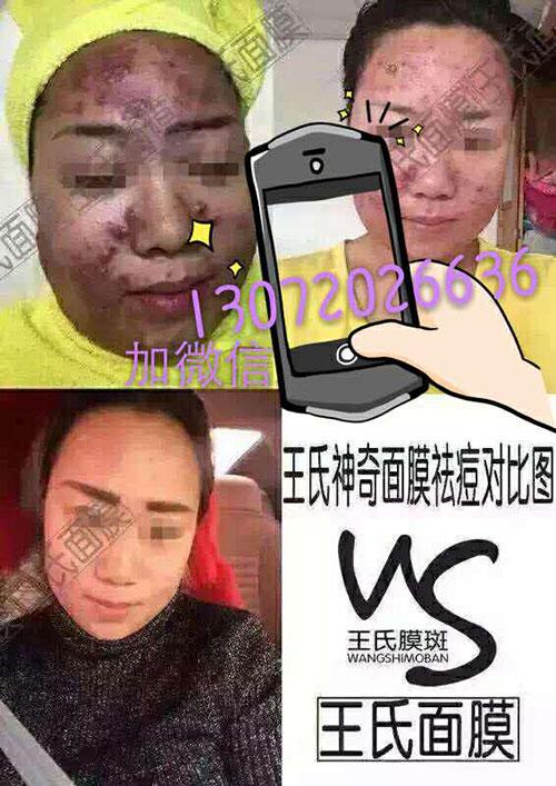 王氏中药调肤面膜