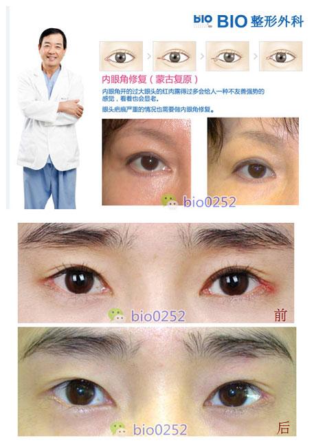 外眼角复原手术做得最好的BIO整形医院