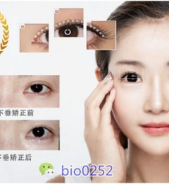 韩国顶尖眼部修复专家BIO整形外科洪星杓院长
