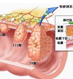 现代人肠癌高发 可能与吃红肉过多有关