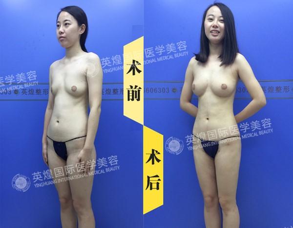 北京英煌医疗美容丰胸网红自述