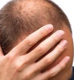 白发多狂掉发 改变生活习惯还你一头乌发