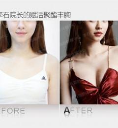 李石院长脂肪体雕中心Mix赋活脂肪移植丰胸案例对比图