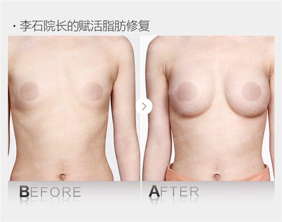 李石院长赋活脂肪修复对比图