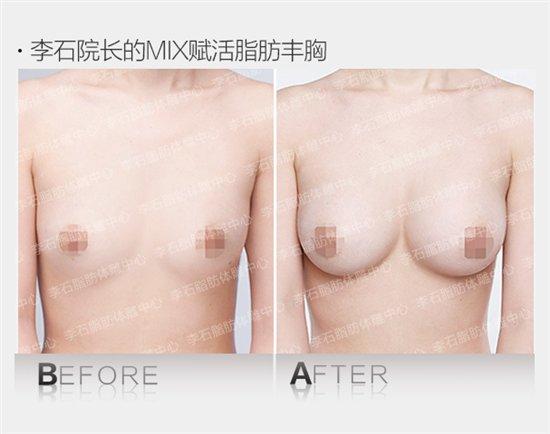 赋活脂肪修复对比图