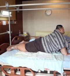 昔日亚洲第一胖600斤李志成 减重术后判若两人
