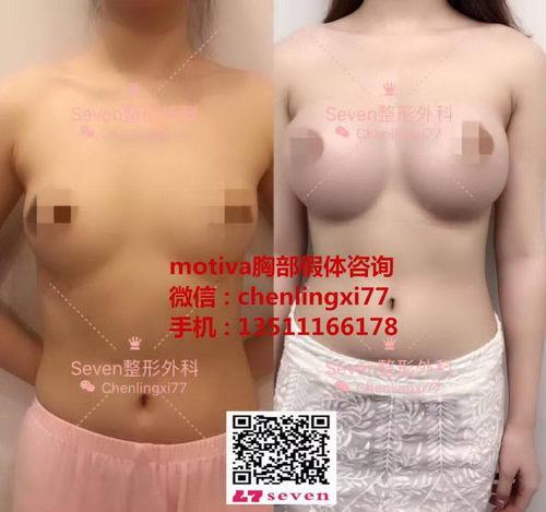 哪里可以做motiva胸部假体?需要多少钱?