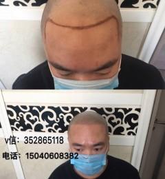 毛囊纹发适合什么样的人群?做完会不会发蓝?
