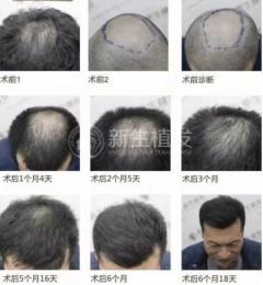 平安保险高度认可南京新生植发医院专业技术,再次合作无压力