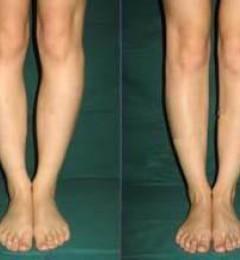 王明利博士:自体脂肪拯救O型腿,安全有效!