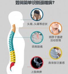 颈舒颗粒:测测你属于哪种颈椎病?
