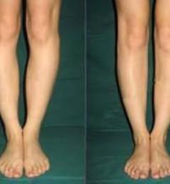 王明利博士:自体脂肪让你拥有女神的标配,长直美腿