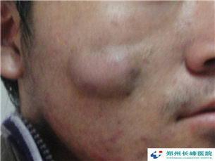 郑州长峰医院告诫:只有祛除血管瘤,才能留住你的事业、婚姻!