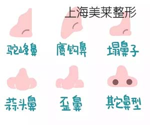 上海美莱隆鼻多少钱?美莱专家为您解答