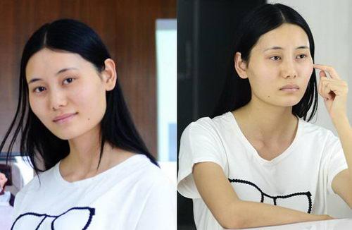 待嫁准新娘在上海首尔丽格整形美容医院完成下颌角手术