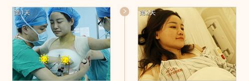 长沙美莱整形医院隆胸案例  美莱假体隆胸真人秀