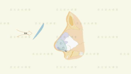 米扬丽格巫文云,告诉你隆鼻不只是垫假体《整就大美人》