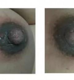 五洲中医专家李巍教您:当哺乳期遇到乳腺炎,宝妈应该怎么办?