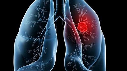 易瑞沙和泰瑞沙区别,奥希替尼azd9291相对于易瑞沙,特罗凯治疗肺癌的优势在哪里?