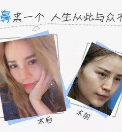 上海玫瑰整形隆鼻真实案例分享