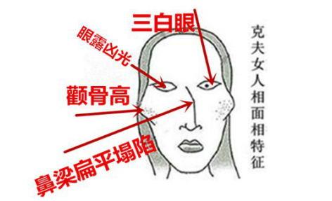 北京圣嘉新张笑天:颧骨形态影响面部整体美感