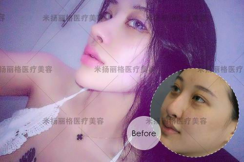 明星心目中的明星――北京米扬丽格巫院长和他的云梯式综合隆鼻术