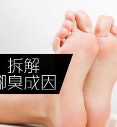 了解脚臭原因 对症治疗不再难