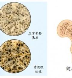 骨质疏松症可致严重骨折 适当治疗可增加骨质密度