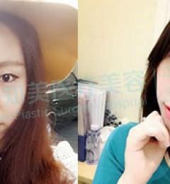 割双眼皮,为什么你恢复总是比别人慢东莞知美医疗美容