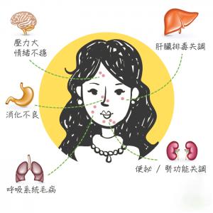 想似韩星般拥有白滑且发光的美肌?首要条件必然是脸上零暗疮,其实暗疮位置正正反映身体不同部份出现问题,针对源头处理,根治恼人暗疮! (1) 额头中央 反映病人心火旺盛、血液循环欠佳,或跟工作压力大及睡眠质素差有关。 (2) 面颊 长在左面颊即肝火旺、肝郁,患者会伴随口干、口苦及易疲倦征状。右面颊则与肺部失常有关,譬如感冒及发烧后,或有皮肤敏感、鼻敏感及湿疹的人。 (3) 下巴 下巴易长暗疮,正反映肠胃湿热,包括便秘及肚泻。 (4) 人中 人中附近生疮,多涉及内分泌失调,常见于经期前后。嘴角边长暗疮主要是便秘。 (5) 鼻子 鼻尖长暗疮即有胃火,泛指消化系统出毛病,尤见于胃酸倒流及胃酸过多的病人。鼻翼则与生殖系统有关,如女生排卵或经期前后,鼻翼易生「痘痘」。 (6) 眉 眉骨生疮,多与胆分泌失常有关,因排毒出现障碍,累积毒素。两眉中间则属心悸,即患者心律不正或常感心慌慌。