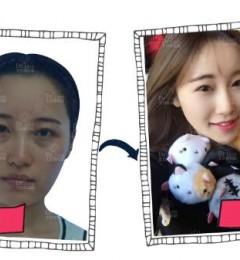 北京哪个医生做面部提升术效果好 走进时代,带出美丽