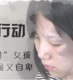"""南昌佳美橡皮擦公益活动 为""""熊猫女孩""""小雨擦去胎记阴霾"""