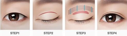 施尔美割双眼皮需要花多少钱 私人定制,用专业雕塑美丽