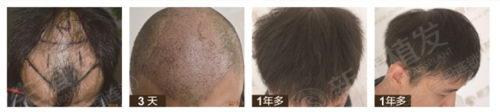 我们请成都新生植发院长姜亚讲脱发,您今天脱发了吗?